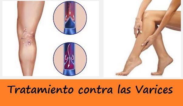 Los asteriscos vasculares en los pies el tratamiento en moskve